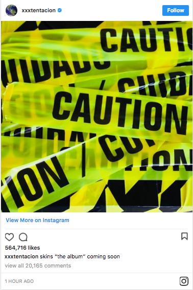"XXXTENTACION Announces New Album ""Skins"" Coming Soon"